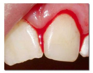 bleeding-gums-1