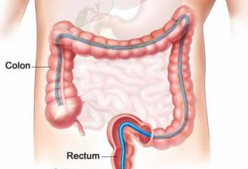 تشخيص سرطان القولون بواسطة اختبار التنفس
